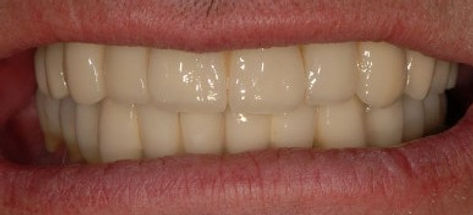 Full mouth reconstuction using implants