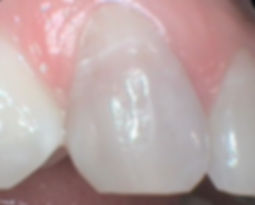 Teeth before bleaching