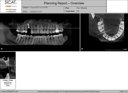 CBCT planning images (2)