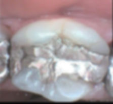 An old amalgam filling