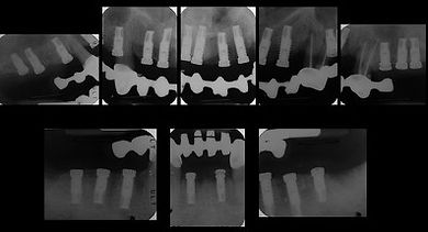 Radiographs following implants