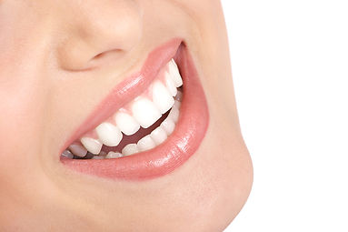 An attractive smile showing perfect teeth