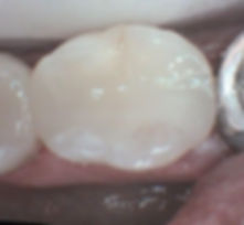 The same tooth with a tooth coloured filling
