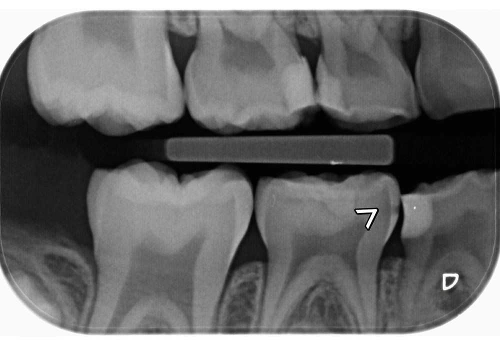 x-ray of child's teeth