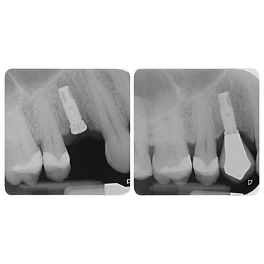 Implant placed, then restored