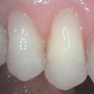 The same teeth after veneers