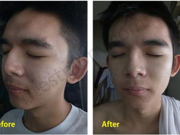 青春痘和痘疤