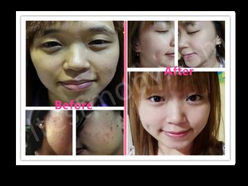 肌肤暗黄、爆痘、毛孔粗大、满脸细纹、脸颊下垂、黑眼圈、眼袋