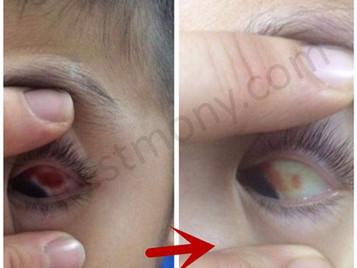 左眼球血管破裂