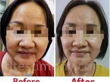 脸部下垂、皱纹、黑斑、更年期