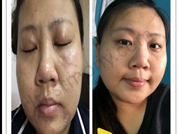 皮肤敏感、痘疤