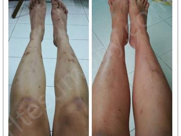 改善皮肤敏感问题