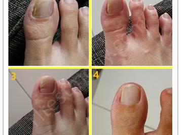 """脚趾头指甲""""坏""""了"""