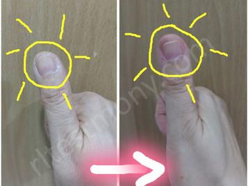 拇指干燥、脱皮、龟裂