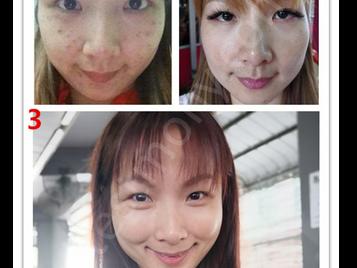 痘痘、痘印、雀斑、皮肤敏感