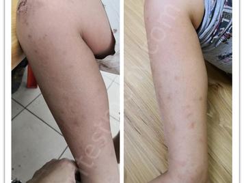 提升孩子免疫力,改善皮肤敏感问题