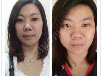 脸部敏感冒痘、毛孔阻塞粗大、脸部肌肤暗淡无光