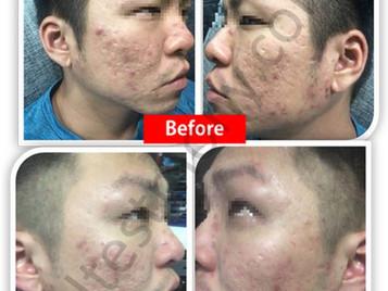 痘痘和肌肤敏感