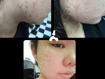 痘痘、粉刺、油性肌肤