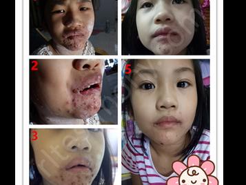 水痘+发烧