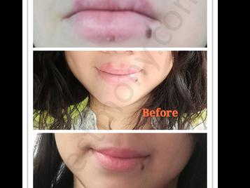 荷尔蒙失调、嘴唇敏感