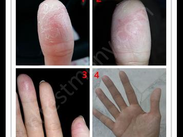 手指干燥、脱皮、龟裂