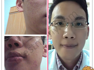 Acne prone skin, bumps and unevenness