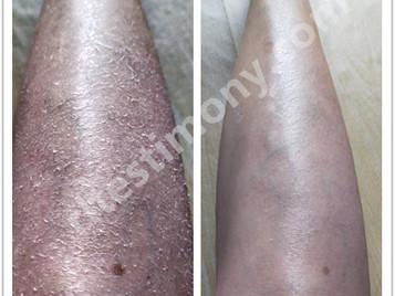 皮肤痕痒、干燥脱皮