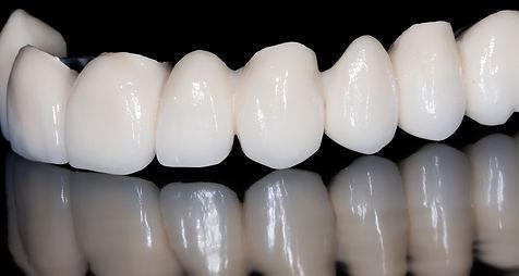 Urgencia en clinica dental en providencia, realizamos implantes dentales, dentista y urgencia en santiago, clinica dental santiago