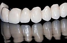 Urgencias Dentales en clinica dental provdencia, Dentista en Providencia especialista en implantes dental y urgencia dental