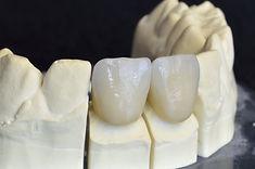 Urgencia dental en Providencia - Implantes dentales - Coronas Circonio en clinica dental providencia