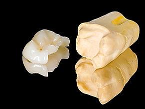 Urgencia dental, dentistas urgencia, dentistas en providencia, dentistas providencia, clinica odontologica providencia