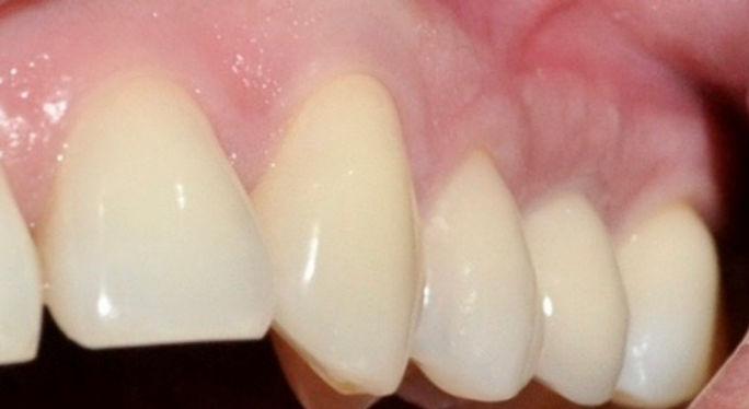 implantes dentale, precios implantes dentales, implantes dentales en santiago, urgencia dental