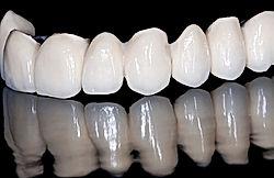implantes dentales, clinica dengal en santiago,clinica dental, precios implantes dentales, providencia implantes dentales