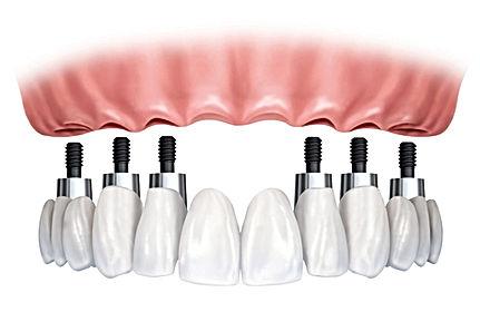 Precio Implantes dentales, urgencia dental, dentista en providencia, implantes, dentales, precio,