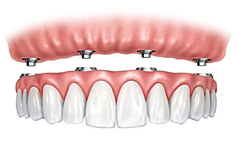 clinica dental en providencia, dentista de urgencia dental, dentla clinica providencia