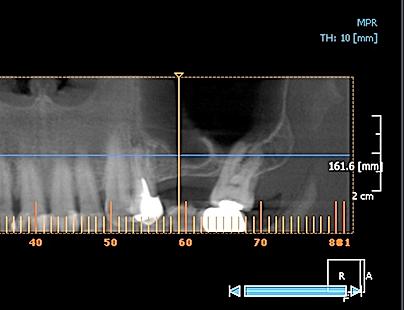 implantes dentales, implantes dentales precios, precios y fotos de implantes dentales, urgencia dental