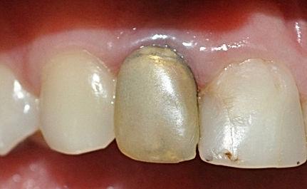 corona-porcelana-protesis-dental-implant