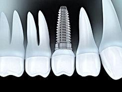 Dentistas en Providencia Implantes 31