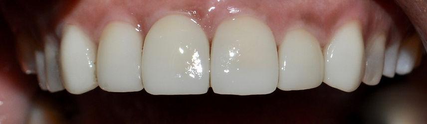 implantes dentales -coronas de porcelana