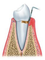 dentistas en providencia, implantes dentales, urgencia dentistas, dentista providencia, coronas