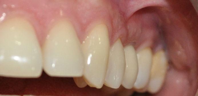 implantes dentales en santiago, precios de implantes dentales, coronas de porcelana, implantes dentales precios, valores de impantes dentales