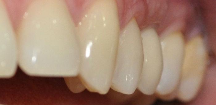 implantes dentales en santiago, precios de implantes dentales, coronas de porcelana, providencia