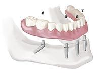 urgencia dental en santiago,  especialistas en clinica dental en providencia. implantes y urgencia dental, los mejores dentistas, en providencia, urgencia en providencia