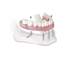 Precio de implnates dentales en santiago, dentista en providencia, urgencia dental, clinica de implnates dentales