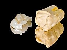 Implantes Dentales, urgencia dental, dentista en Providencia el nuestra clinica dental providencia, urgencias dentales, dentista urgencia