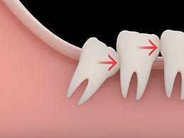 Urgencia dental, Dentistas en providencia, dentista urgencia, implantes dentales  31 Providencia