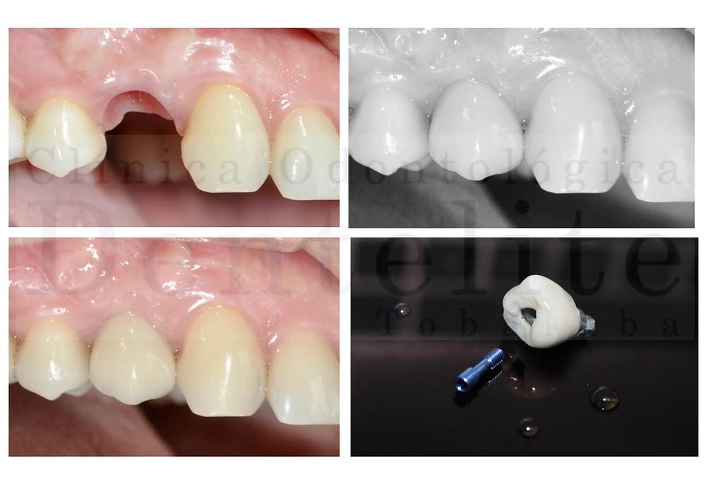 Implantes dentales, implantes, dentales, precios implantes dentales, implantes en santiago