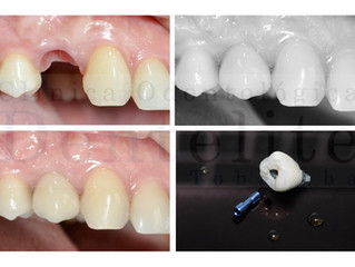 Expertos en Implantes Dentales: Conoce nuestros resultados.
