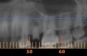 implantes dentales en santiago dentales implantes dentistas en santiago